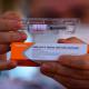 O Brasil tem dados de infecção suficientes para analisar a vacina COVID-19 da Sinovac